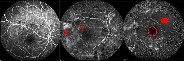 Fases venosas da angiofluoreceinografia de 3 pacientes com retinopatia diabética