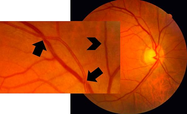 retinografia colorida ilustrando cruzamentos arteriovenosos patológicos (setas), nos quais há compressão das veias pelas artérias e estreitamentos focais (cabeça de seta).