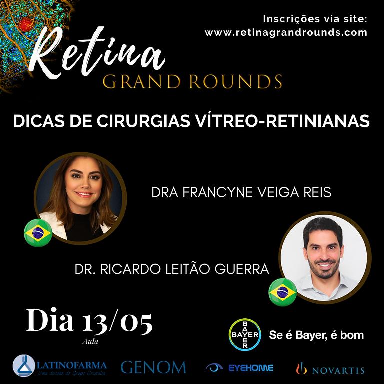 Dicas de cirurgias vítreo-retinianas