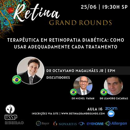 Aula 16 Retina.png