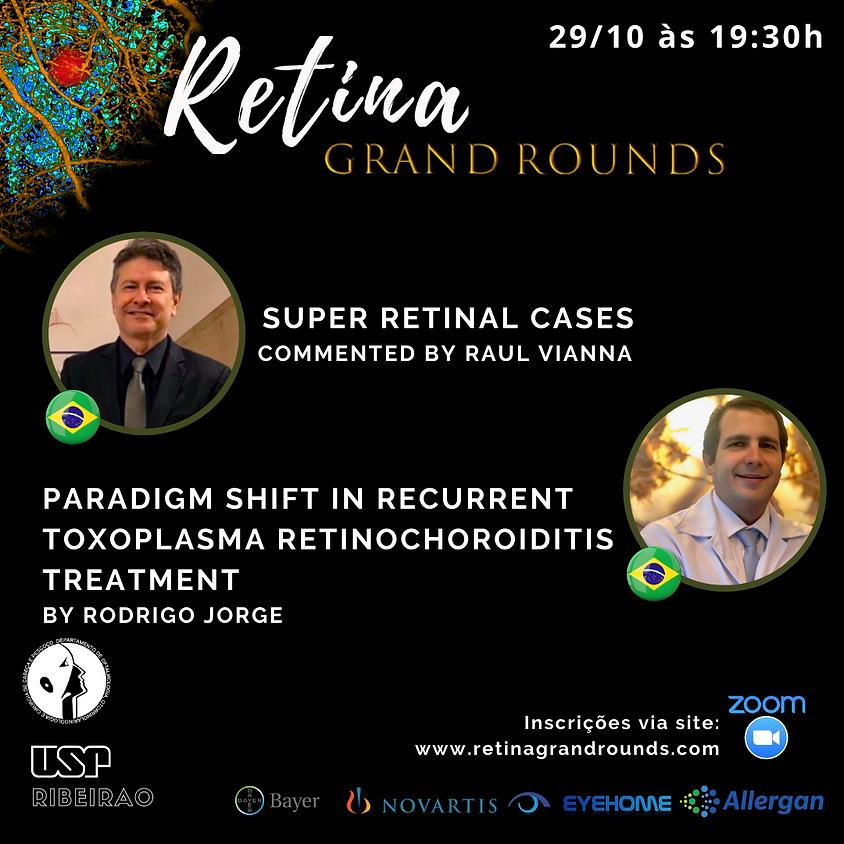 Super retinal cases and Paradigm shift in recurrent toxoplasma retinochoroiditis treatment