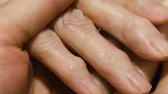 MEDICAL CORNER: STUDY SAYS CANNABIS TREATS RHEUMATOID ARTHRITIS