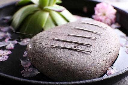 5-acupuncture.jpg