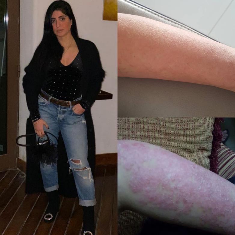 Basma Kazeroni Psoriasis