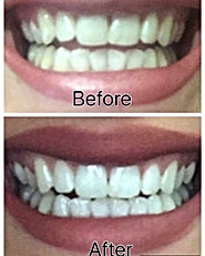 AP 24 Whitening Toothpaste Results