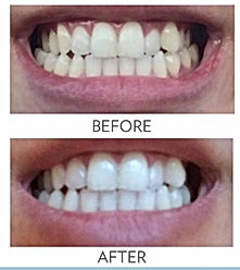 Before & After Whitening Toothpaste