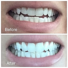 AP 24 Whitening Toothpaste Review