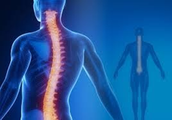 Is Scoliosis Throwing You a Curve?