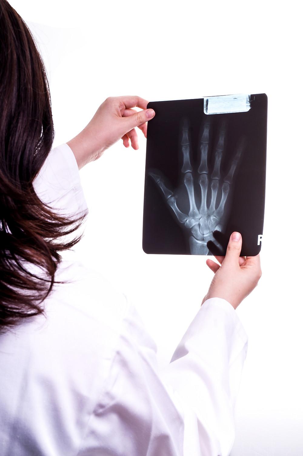 Les conseils du physiothérapeute Denis Fortier afin de mieux guérir d'une fracture