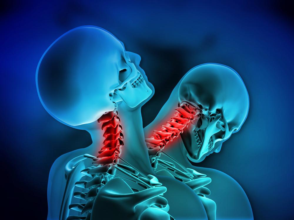 La physiothérapie et les blessures au cou