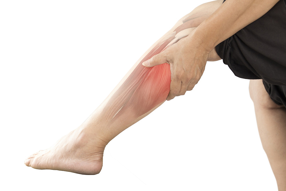 Le physiothérapeute vous donne des conseils pour soulager les crampes musculaires