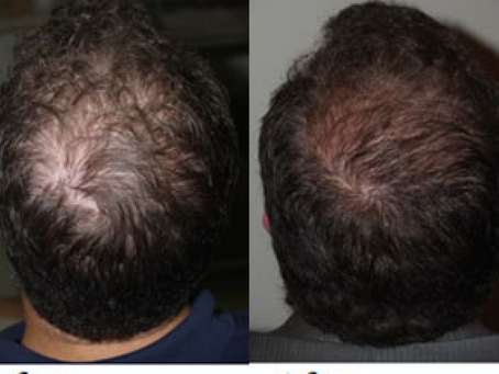 Platelet Rich Plasma Treatment for Hair Loss