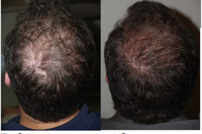Platelet rich plasma PRP for hair loss treatment