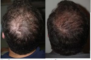 Platelet rich plasma PRP for hair loss treatment