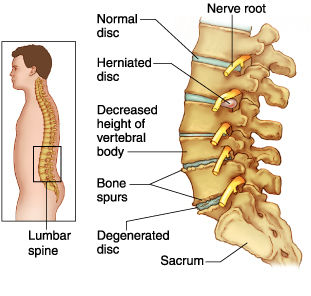 Spinal conditions. Dynamic Osteopaths Bromsgrove