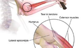 Tennis elbow treatment. Dynamic osteopaths Solihull