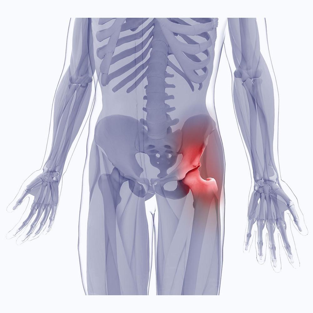 Prp treatment for hip pain