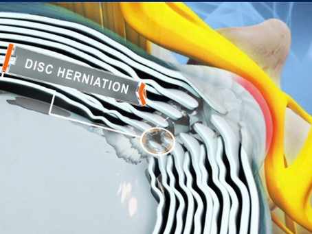 What are the signs of a Disc Herniation?