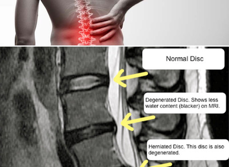 Chronic Back Pain Treatment Birmingham
