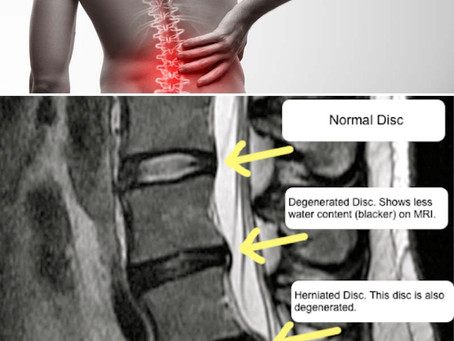 Chronic Back Pain Treatment Birmingham