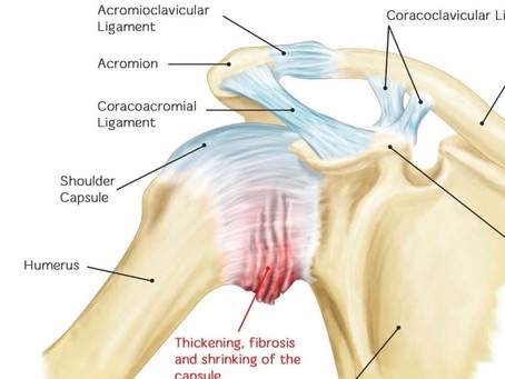 Treatment for frozen shoulder Birmingham