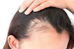 hair loss treatment for women Birmingham