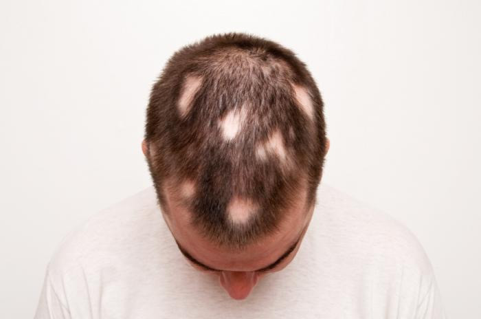 Alopecia Areata Treatment Birmingham and Solihull