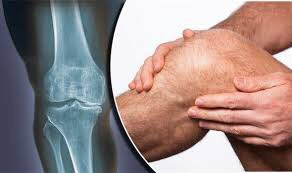 Treatment for Knee Osteoarthritis Birmingham