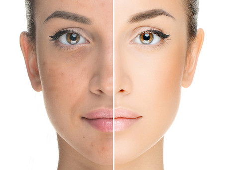 Platelet Rich Plasma (PRP) Therapy Birmingham: The hottest medical treatment for skin rejuvenation &