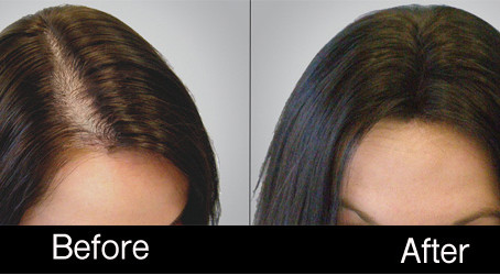 Platelet Rich Plasma (PRP) Treatment. The No.1 non-surgical solution for Hair Loss Treatment