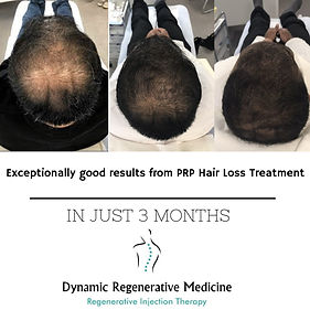 Hair loss clinic Birmingham