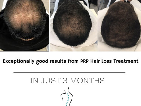 Hair Loss Treatment: Platelet-Rich Plasma vs Minoxidil Therapy