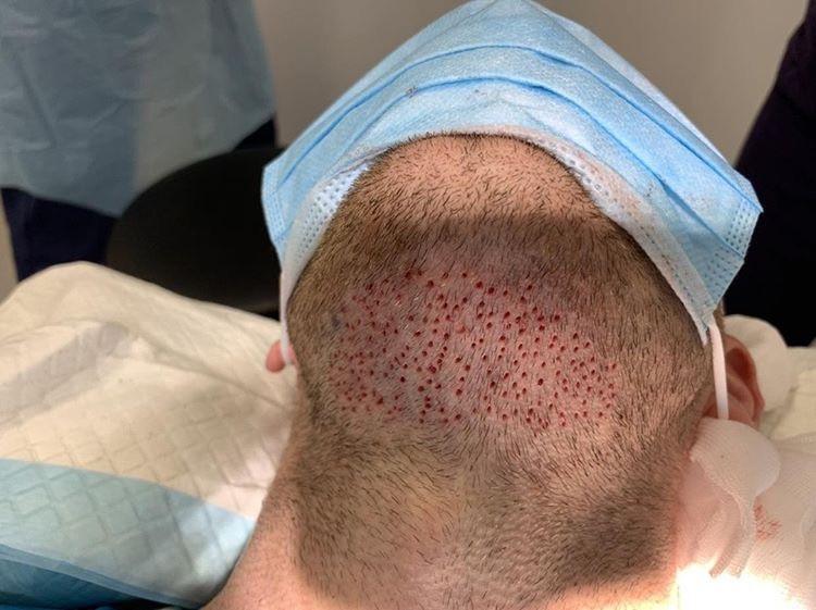 FUE beard hair transplant. Hair loss treatment Birmingham