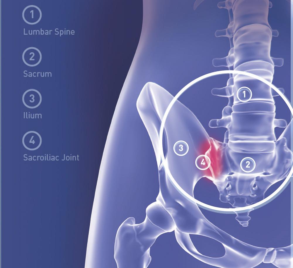 Sacroiliac joint pain. Dynamic Osteopaths Birmingham