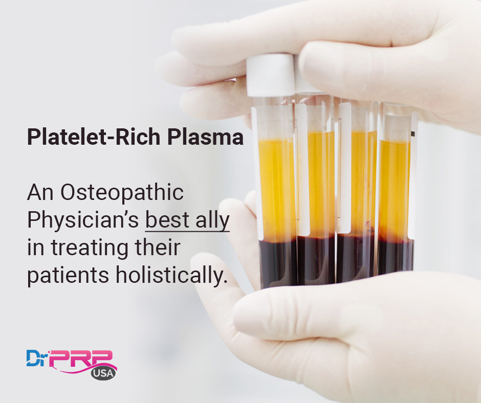 platelet rich plasma solihull