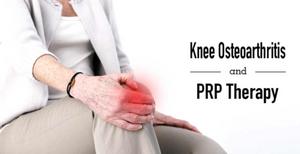 PRP treatment for knee arthritis Birmingham. Dynamic Osteopaths