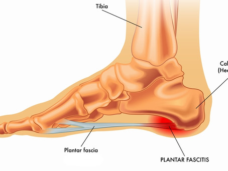 What's the best treatment for chronic planter fasciitis? PRP or steroid? Dynamic Osteopaths Solihull