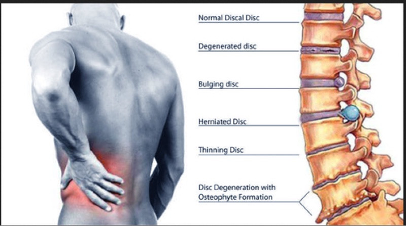Back Pain Treatment Edgbaston Birmingham. Dynamic Osteopaths