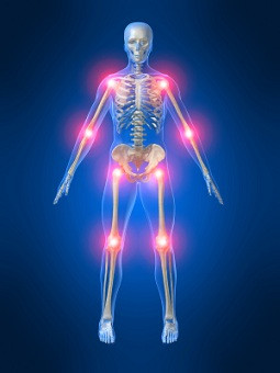 Osteopathic Treatment for Rheumatoid Arthritis