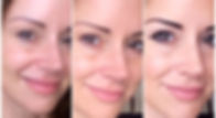 Dynamic regenerative medicine Dermal Fillers Solihull Henley-In-Arden