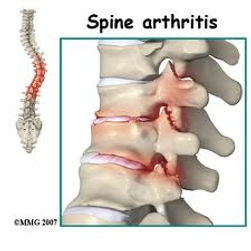 Spine arthritis and treatment, Dynamic Osteopaths Solihull