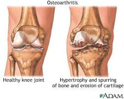 Treatment for Arthritis - Age related changes (Osteoarthritis)