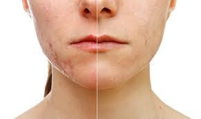 Treatment for Scars and Stretch Marks Birmingham