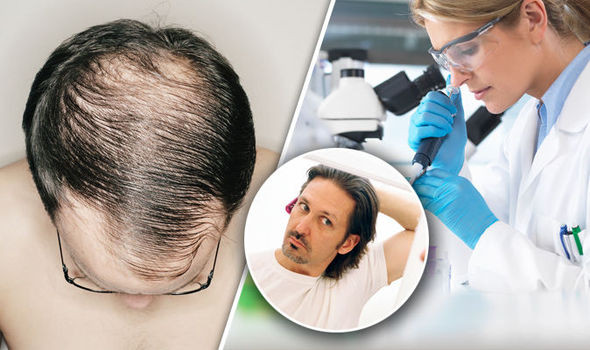 Topical Finasteride Treatment Now Available UK