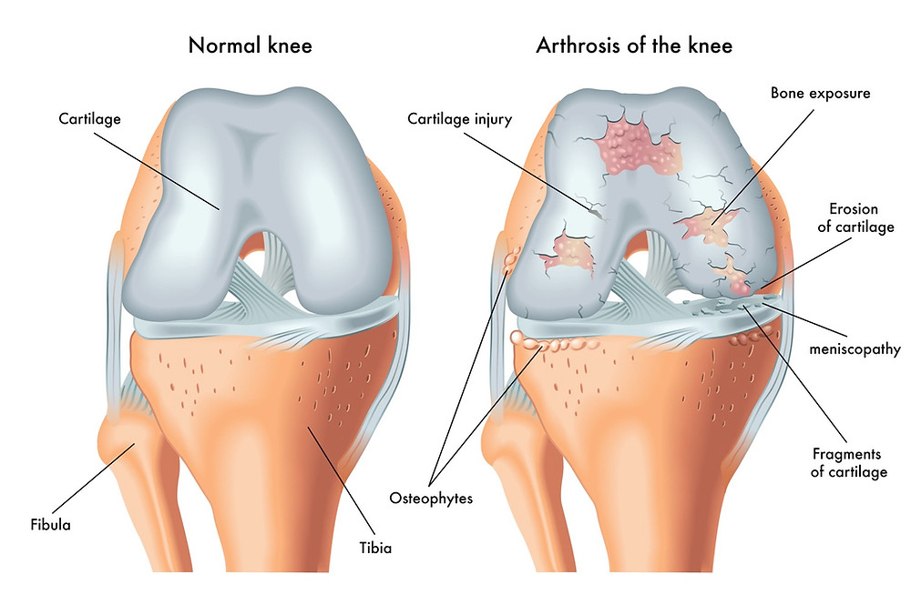 Cartilage Repair Through Orthobiological Intervention Birmingham