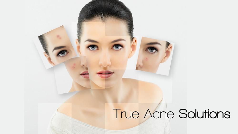 Obagi skin treatment for Acne - Dynamic Regenerative Medicine