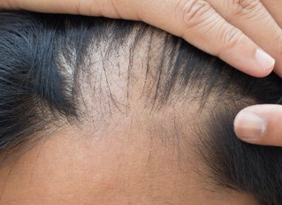 Hair Loss Treatment Birmingham. PRP Hair Restoration Clinic