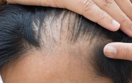 Hair Loss Treatment Birmingham. PRP Hair Restoration Clinic