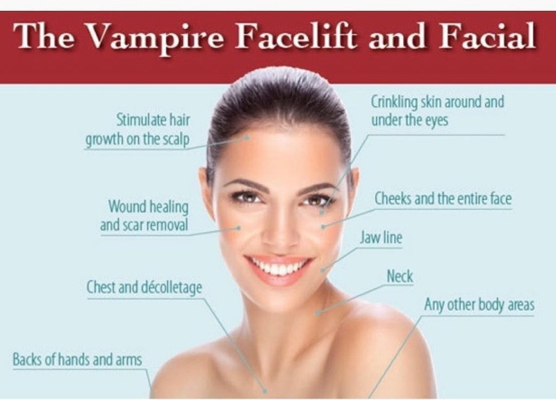 Are You Looking For Effective Skin Rejuvenation? Vampire Facial Birmingham