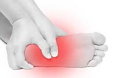 planter fasciitis treatmet Solihull